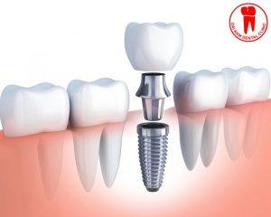 trồng răng implant tại đại nam sài gòn đà nẵng