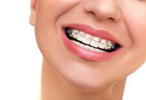 niềng răng một hàm tại đà nẵng
