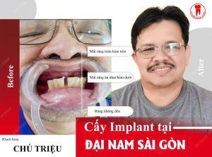 trồng răng implant tại đại nam sài gòn ở đà nẵng