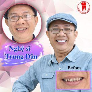 Nghệ sĩ trung dân làm răng sứ