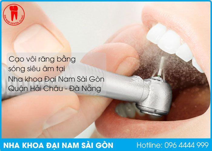 cạo vôi răng bằng sóng siêu âm tại quận hải châu đà nẵng