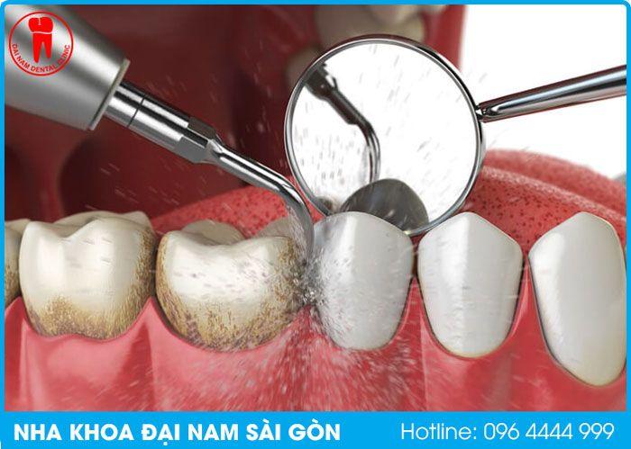 cạo vôi răng tại nha khoa quận thanh khê đà nẵng