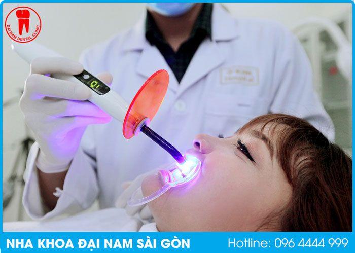 làm khô vết trám răng tại quận hải châu bằng laser tech