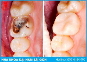 nha khoa trám răng tại quận thanh khê
