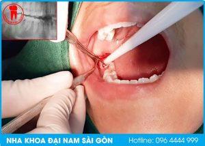 nhổ răng không đau tại quận hải châu, đà nẵng