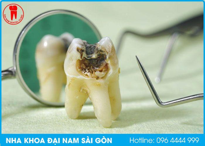 nhổ răng tại nha khoa đại nam sài gòn quận thanh khê